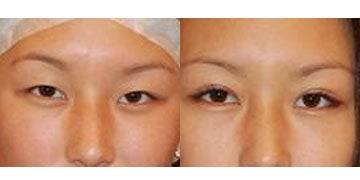 Asian Eyelid Surgery before and after photos
