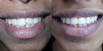 Tooth Repair before and after photos