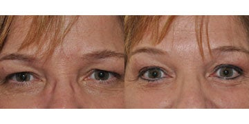 Permanent Makeup before and after photos