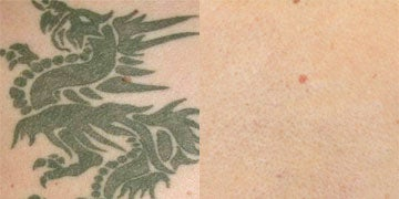 PicoSure before and after photos