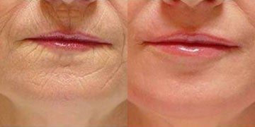 Skin Care before and after photos