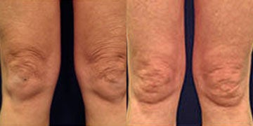 Skin Tightening before and after photos
