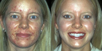 Acne Treatment before and after photos