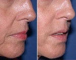 Injectable Fillers before and after photos