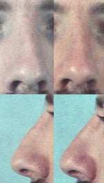 Septo-Rhinoplasty Performed in June 2013, Results Are Less Than Desirable. Still Crooked, and Have a Bump. Any Options? (photo)