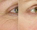 Wrinkle Treatment before and after photos