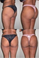 10 Things I Wish I Knew Before Butt Augmentation
