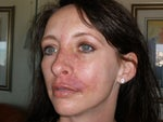 Cellulitis from Juvederm