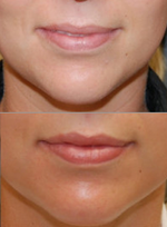 Silikon 1000 for Lip Augmentation