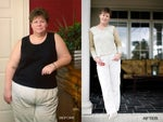 Top Ten Tips Before and After Gastric Bypass Surgery