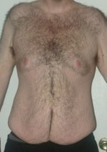 Any Where in Florida Central, South, Southwest for a $4000 Abdominoplasty? (photo)