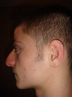 Getting a nose job at 18 a good idea?