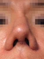 Fixing asymetrical nostril after revision rhinoplasty with ear graft?