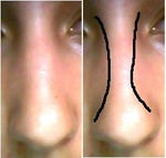 How to straighten my crooked nose?