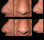 Steroid injections to reduce lymphatic edema on nose?