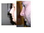 Reduced breathing after rhinoplasty