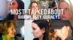 The Most-Talked About Rhinoplasty Transformations: 10 Before & Afters [PHOTOS]