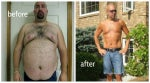 A RealSelf community member and dad of two details his gastric bypass journey.