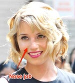 Dianna Agron gets nose job