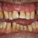 My teeth before dental implants