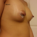 The right nipple is puffy