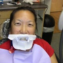 before zoom whitening - the shielding
