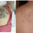 before any treatments (except test spots done for 2 outer flowers) and 6 months after 9 treatments