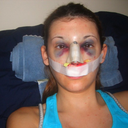 Immediately after rhinoplasty surgery