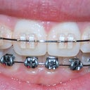 January 13th - Conventional braces to correct botched Six Month Smiles orthodontics.