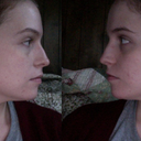 Skin above left nostril is shorter and flatter than right. Also note bump height and thinner bridge appearance. Right side's bridge looks fuller.