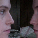 Right side of nose shows no obvious bump. Left nostril is less full than right nostril.