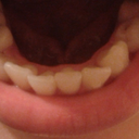 bottom teeth view :) - Tray#8