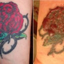 The original tattoo and the tattoo blistered after 2nd session