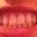 Before - missing incisors