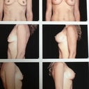 Before and after implants in 2004