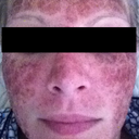 "Day 5 after CO2 Laser Resurfacing Using the EXEL 02 Fractional C02 Laser Machine at the Cosmetic Medical Clinic (CMC) in Sydney. www.cmcnsw.com.au  "" when i woke up"""