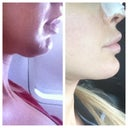 Chin Lipo: Wow beyond my expectations! I guess I should have done it awhile ago $1600.. Worth it!