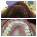 Upper Teeth (top picture 9/11/2013 and bottom picture 12/7/2013)