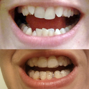 Before and After, Aligner 15