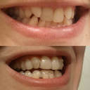 Before and After, Aligner 15 - left side