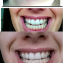1st picture- before invisalign 2nd picture- tray 18/24 3rd picture- 22/24 !!!
