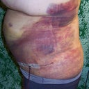 Left side 4 days post-op I'm now sure this is part of seroma and not just lipo bruising.