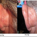 Fiances Ostoplasty before and after pics. Left ear. NO CHANGE! no cartlidge removed at all!