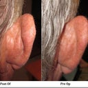 Fiances ostoplasty before and after pics. Right ear, skin pulled over 1-2cm, No cartlidge removed at all!