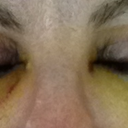Day 6 - reduced bruising on eyelids. Stitches now removed.