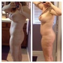 20 day v 2.5 mos rt side