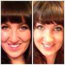 Before and 2 weeks. My smile is back! The anti-aging effects of a new nose. ;)