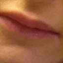 My lips now, horrible with this lump in the middle, they look smaller and ugly now!!