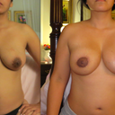 Before procedure and 6 weeks after revision to areolas