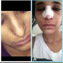 My nose before Vs After the tip was very low before . Picture on right is 2 days after surgery